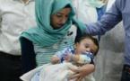 Un bébé né avec huit bras et jambes opérés avec succès